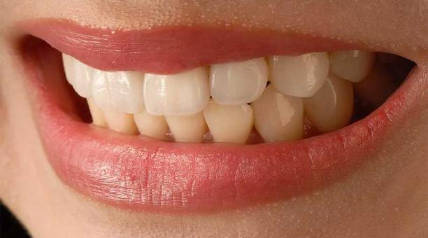 Imagen referencial. El bruxismo consiste en apretar fuertemente los dientes y muelas lo que provoca un desgaste. Foto: Pixabay