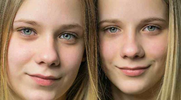 Imagen referencial: el número de gemelos fraternos ha aumentado en el mundo por el incremento de los tratamientos de fertilización in vitro. Pixabay