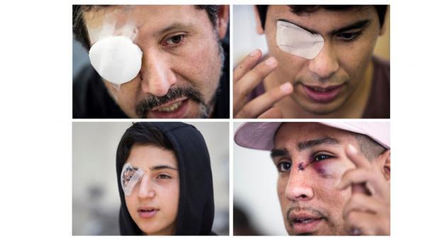 La mayoría de los afectados en los ojos durante la ola de protestas en Chile -197, según el último reporte del estatal Instituto Nacional de Derechos Humanos (INDH). Foto: EFE