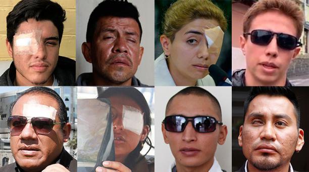 Perdieron un ojo, afectados en el contexto de las protestas de octubre del 2019 en Ecuador. Foto: EL COMERCIO
